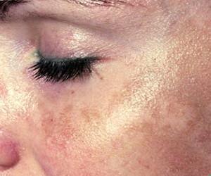 mycose peau visage